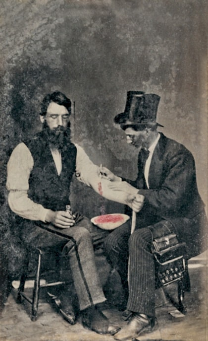 Bloodletting - A common medical practice in ancient times.